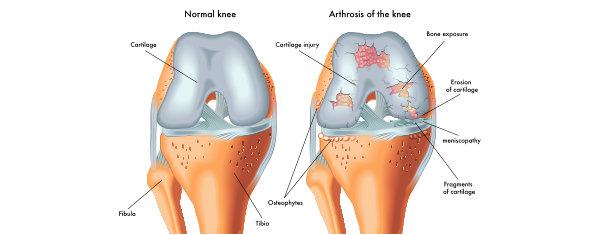 symptoms of arthrosis of the knee