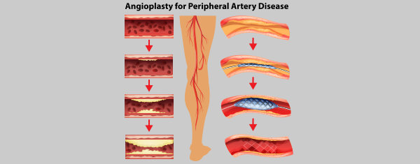 angioplasty for peripheral artery disease