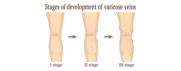 stages of development of varicose veins