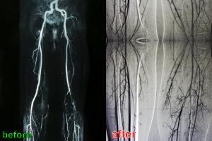 angiogram of leg vessels